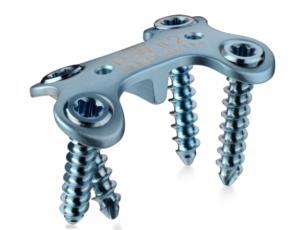 DARCO® Модульная система для переднего отдела стопы
