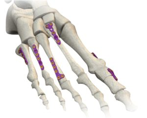 ORTHOLOC® многоосная система фиксации переломов переднего отдела стопы