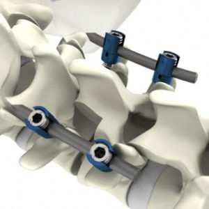 S4® Spinal System