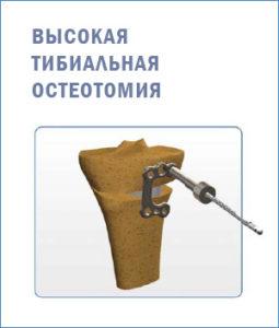 Высокая тибиальная остеотомия