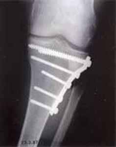 Случай 1: Пациент-женщина, 61 год, перелом тибиального плато, восполнение спонгиозы гранулами Orthoss®.
