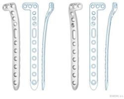 Пластины большеберцовые проксимальные с угловой стабильностью
