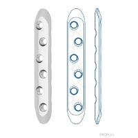 Пластины прямые с угловой стабильностью