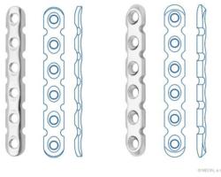 Пластины реконструктивные с угловой стабильностью