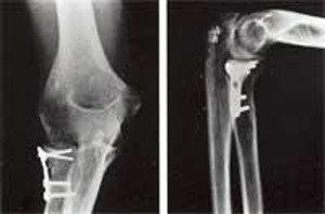 Случай 2. Пациент-женщина, 22 года, перелом головки лучевой кости со смещением.