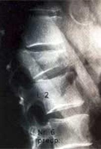 Случай 4: Перелом тела первого поясничного позвонка с клиновидной деформацией (28°).