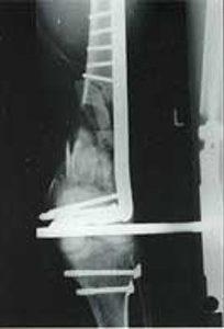 2 дня после операции. Дефект заполнен смесью Orthoss® и спонгиозной аутокостью (1:1).