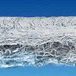 Chondro-Gide® – коллагеновая мембрана для пластики дефектов хряща