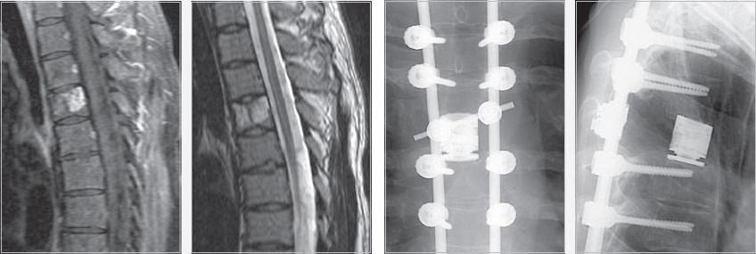 Мужчина, 22 года, саркома Юинга (Ewing's sarcoma). Корпэктомия с замещением тела имплантом Obelisc, фиксация транспедикулярной системой.