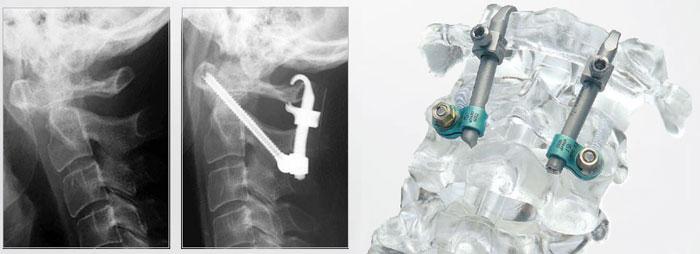 Женщина, 62 года, нестабильность сегмента С1-С2 на фоне ревматоидного артрита. Выполнена трансартикулярная фиксация сегмента С1-С2 винтами и крючком Neon™.