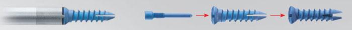 Osmium® - пластина для шейного отдела позвоночника