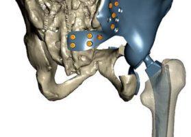 Частичный эндопротез таза в соответствии с КТ-данными пациента